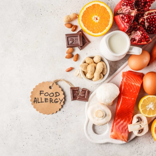 food-allergy-concept2160