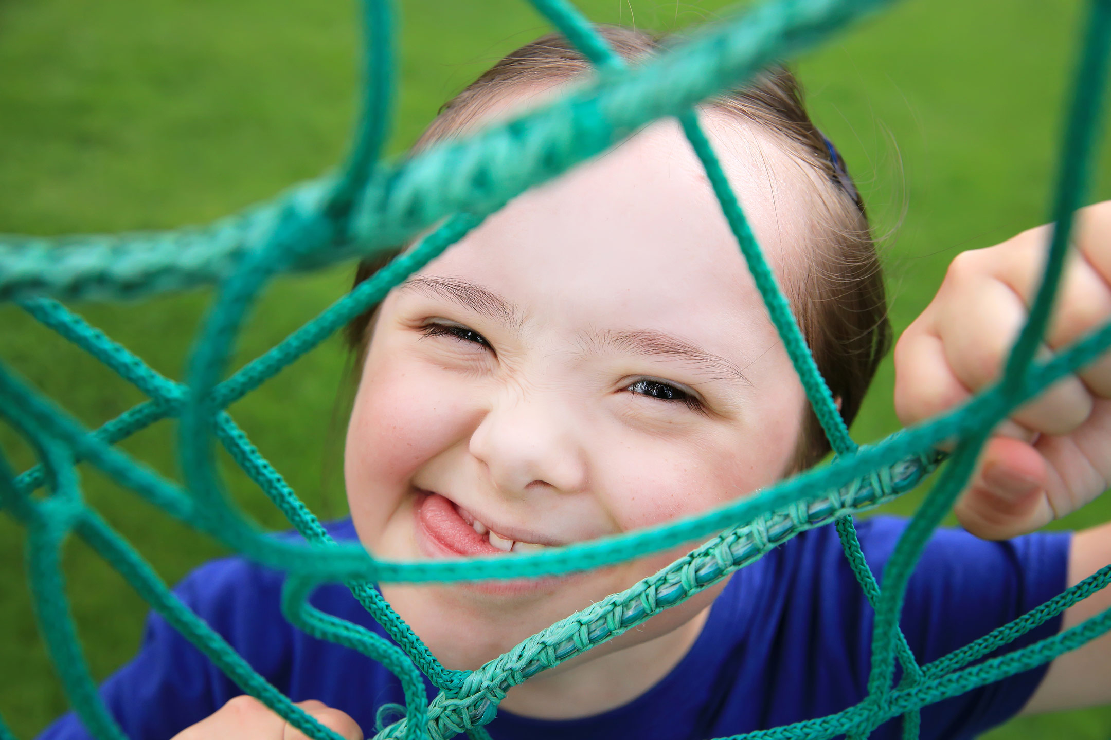 down-syndrome-girl-smiling2160